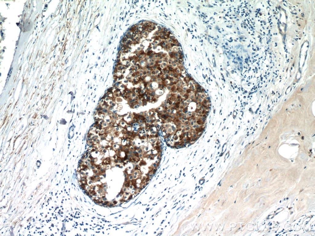 CXCL13/BCA1 Antibody in Immunohistochemistry (Paraffin) (IHC (P))