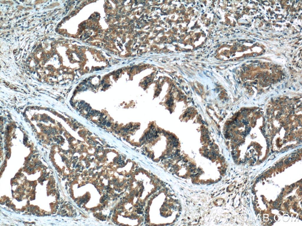 AMPK alpha 1 Antibody in Immunohistochemistry (Paraffin) (IHC (P))