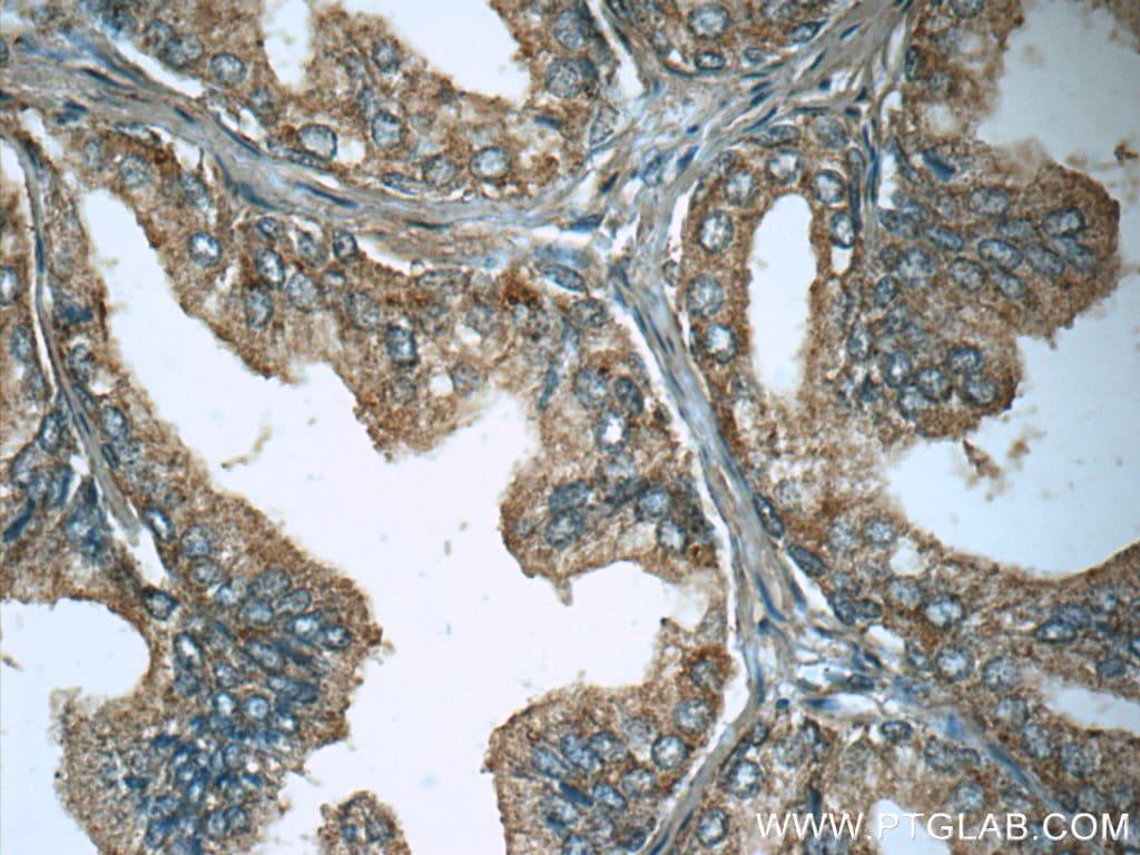 Lactoferrin Antibody in Immunohistochemistry (Paraffin) (IHC (P))