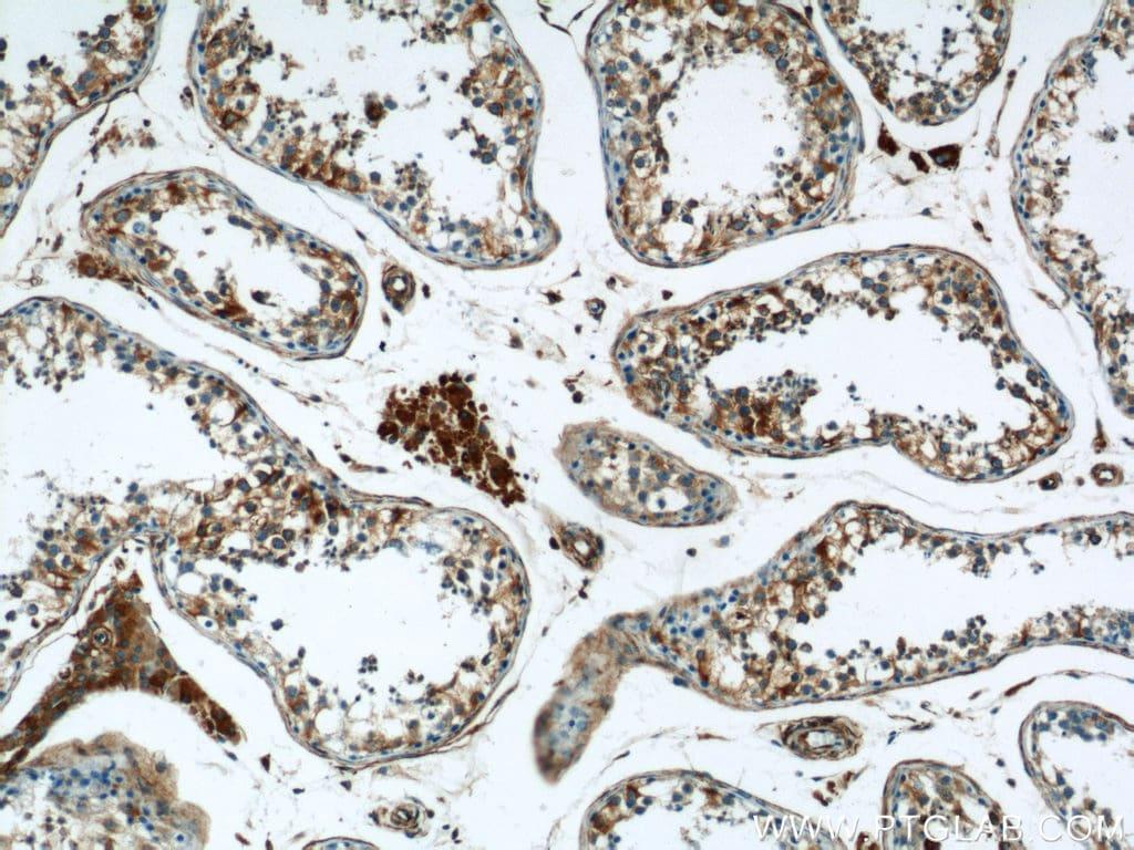 RTN4/NOGO Antibody in Immunohistochemistry (Paraffin) (IHC (P))