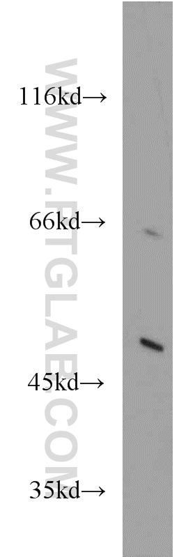 ACOX1 Antibody in Western Blot (WB)