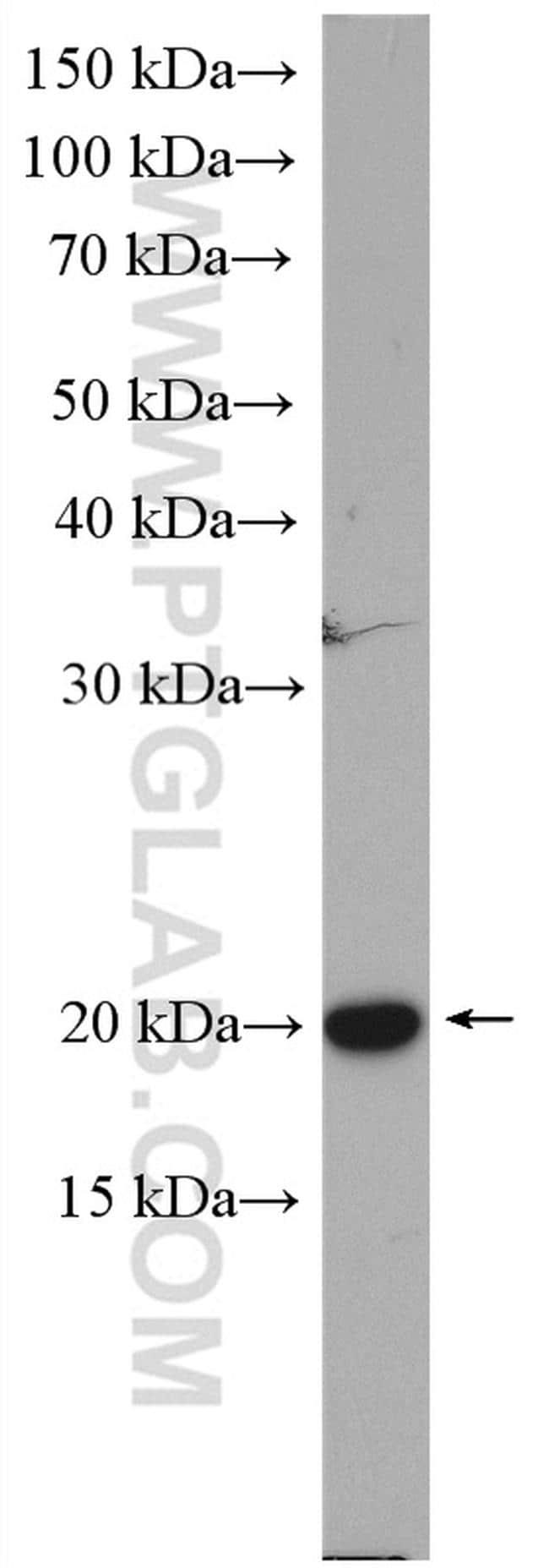 Cofilin Antibody in Western Blot (WB)