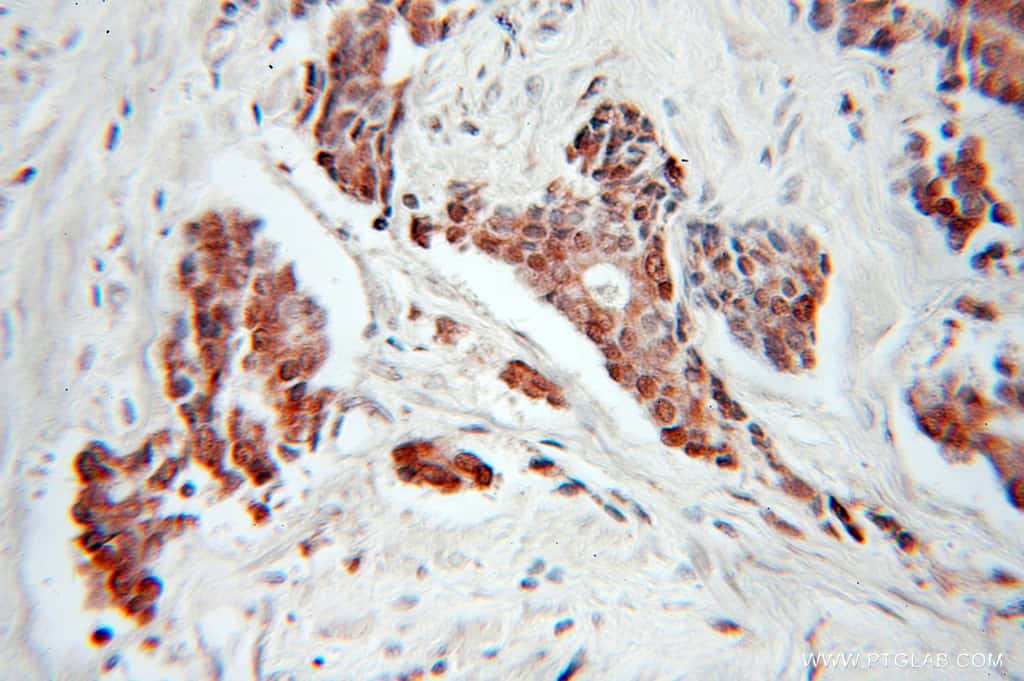 CDC34 Antibody in Immunohistochemistry (Paraffin) (IHC (P))