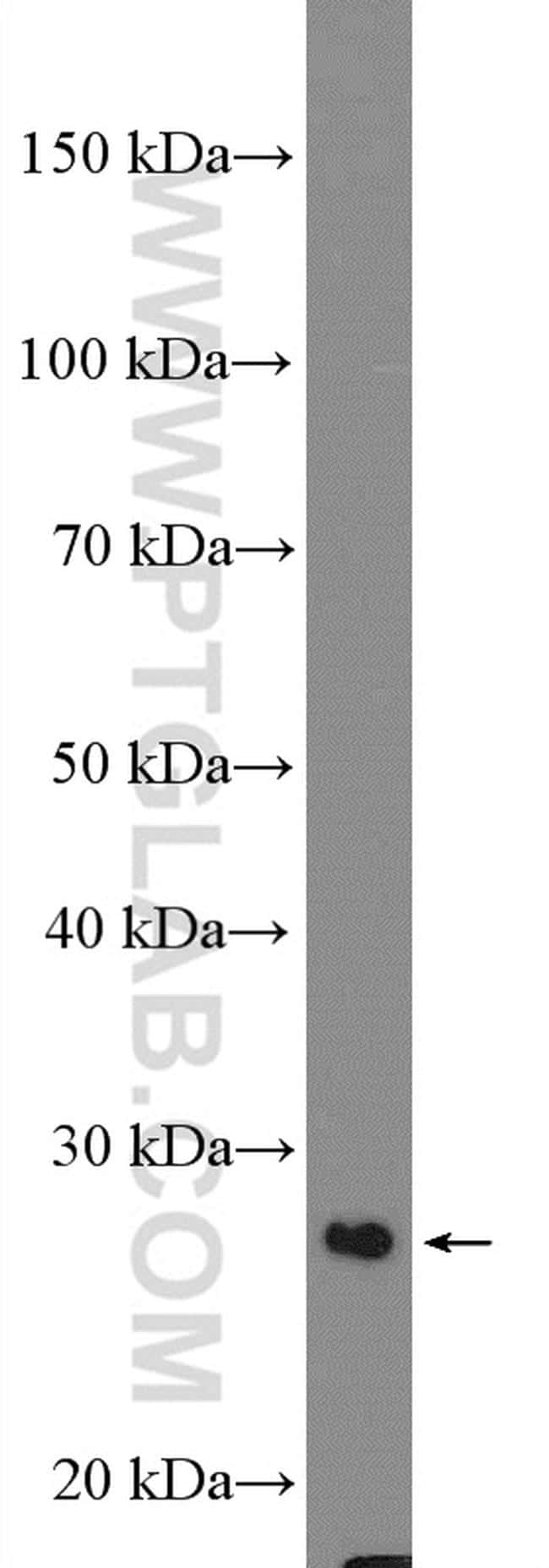 DCUN1D1 Antibody in Western Blot (WB)