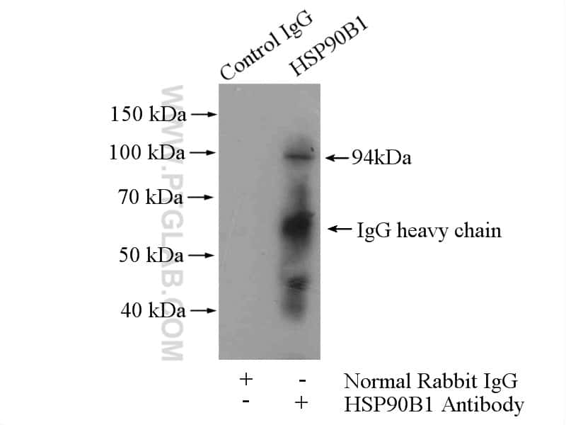 GRP94 Antibody in Immunoprecipitation (IP)