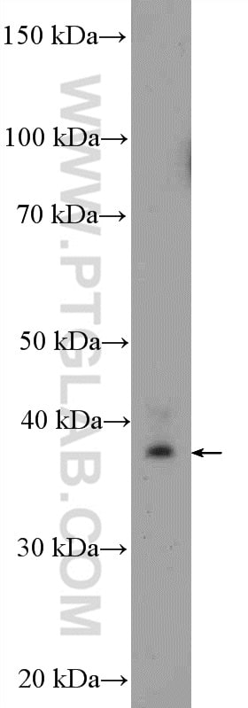 MRPS22 Antibody in Western Blot (WB)