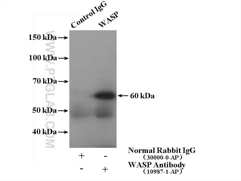 WASP Antibody in Immunoprecipitation (IP)