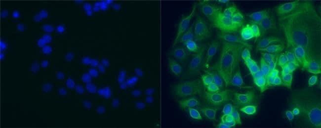 Cytokeratin 8 Antibody in Immunocytochemistry (ICC)