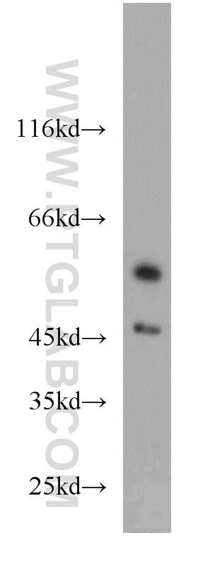 PANK2 Antibody in Western Blot (WB)