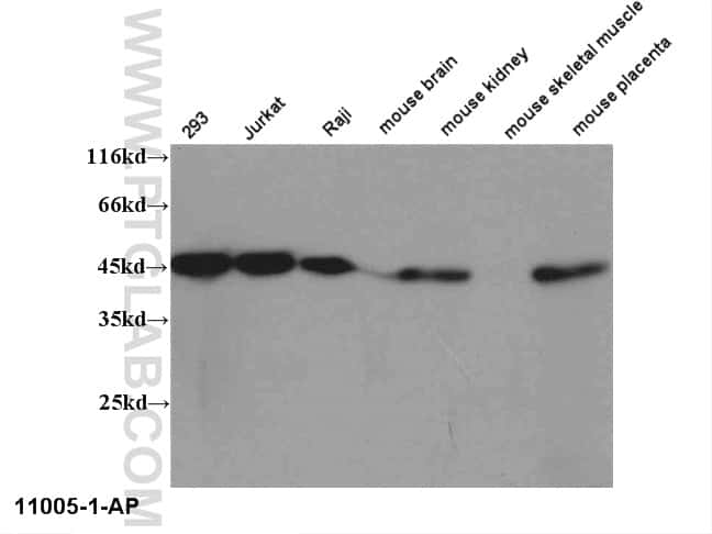 RPL3 Antibody in Western Blot (WB)