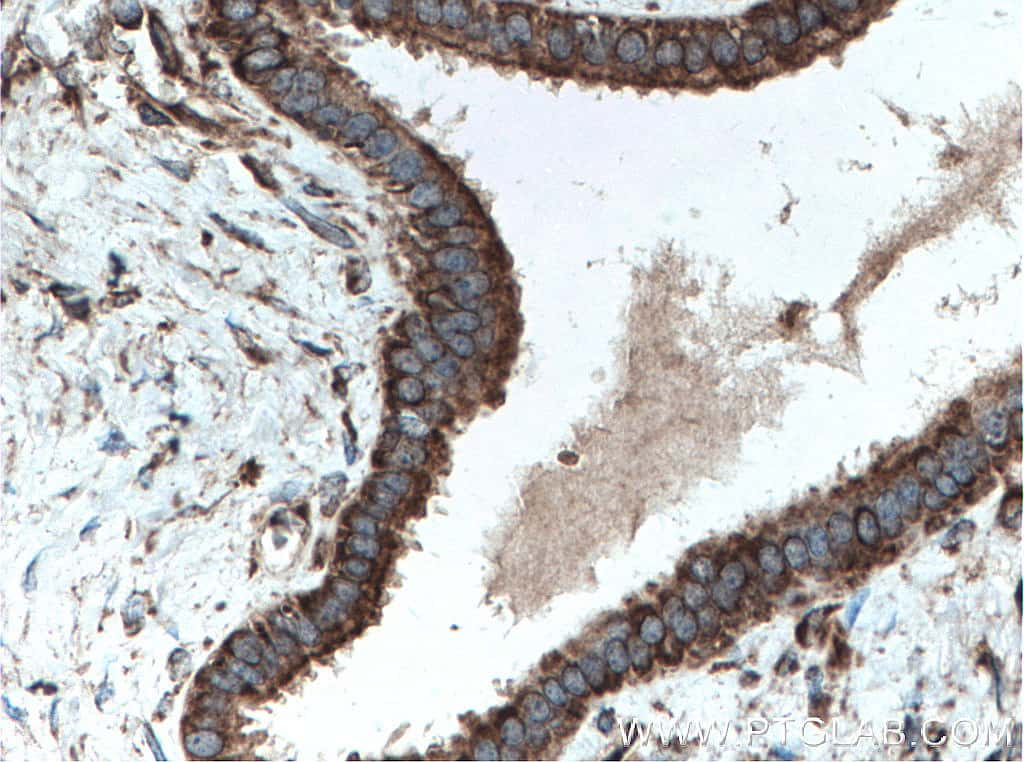 CDK5RAP3 Antibody in Immunohistochemistry (Paraffin) (IHC (P))