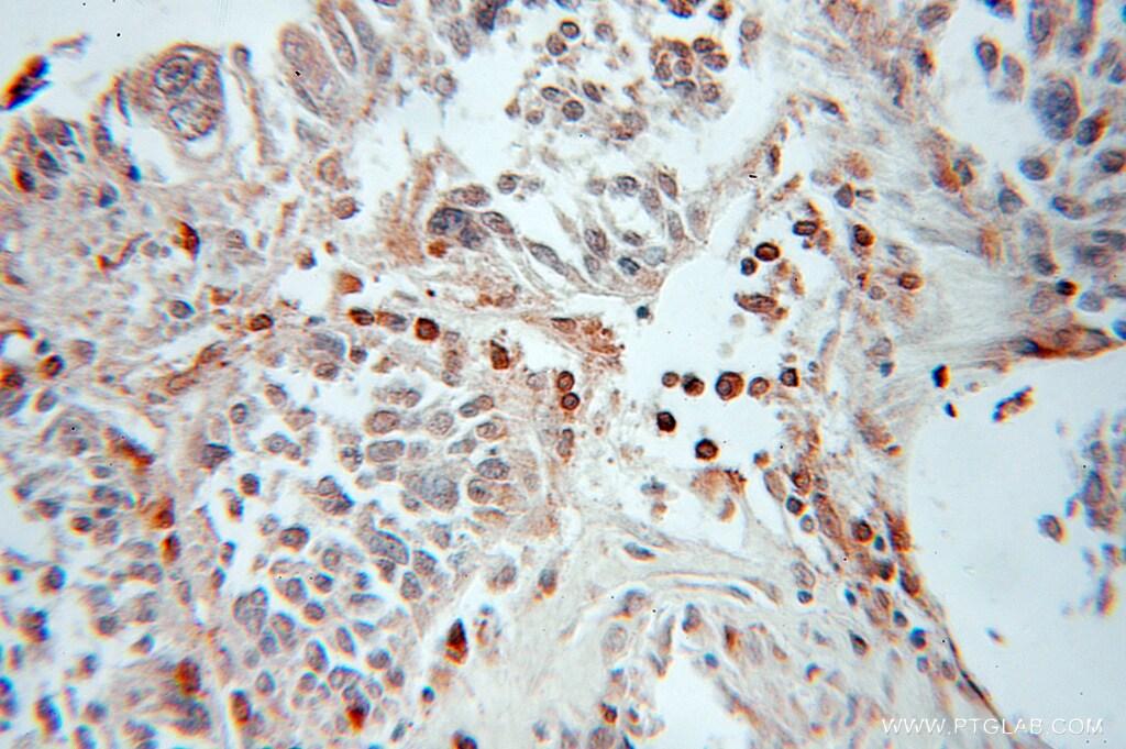 GABARAPL1 Antibody in Immunohistochemistry (Paraffin) (IHC (P))