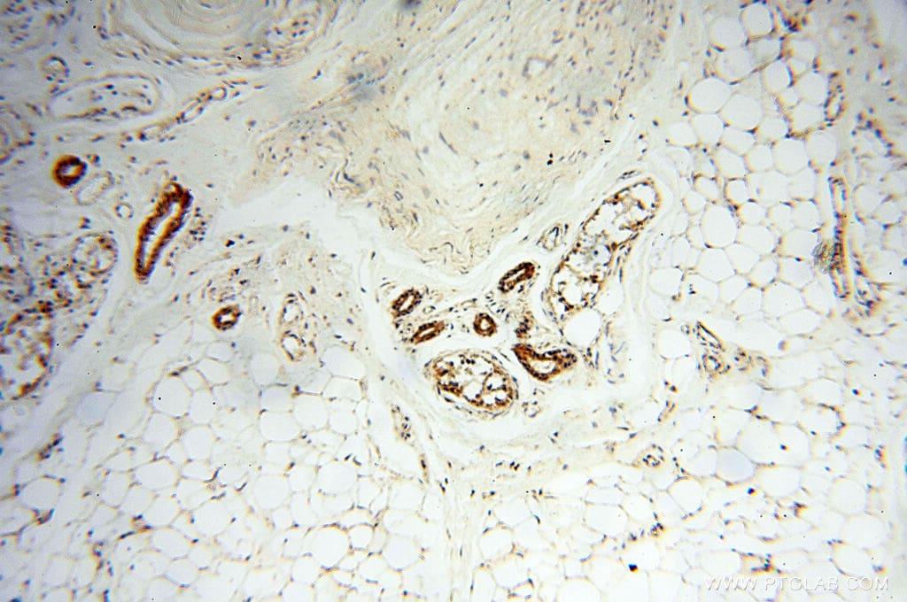 AK2 Antibody in Immunohistochemistry (Paraffin) (IHC (P))