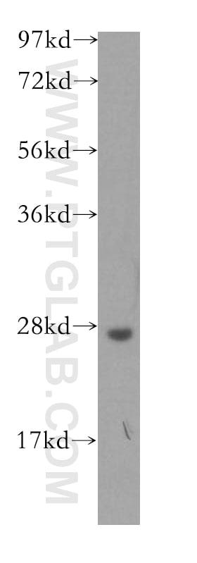 AK2 Antibody in Western Blot (WB)