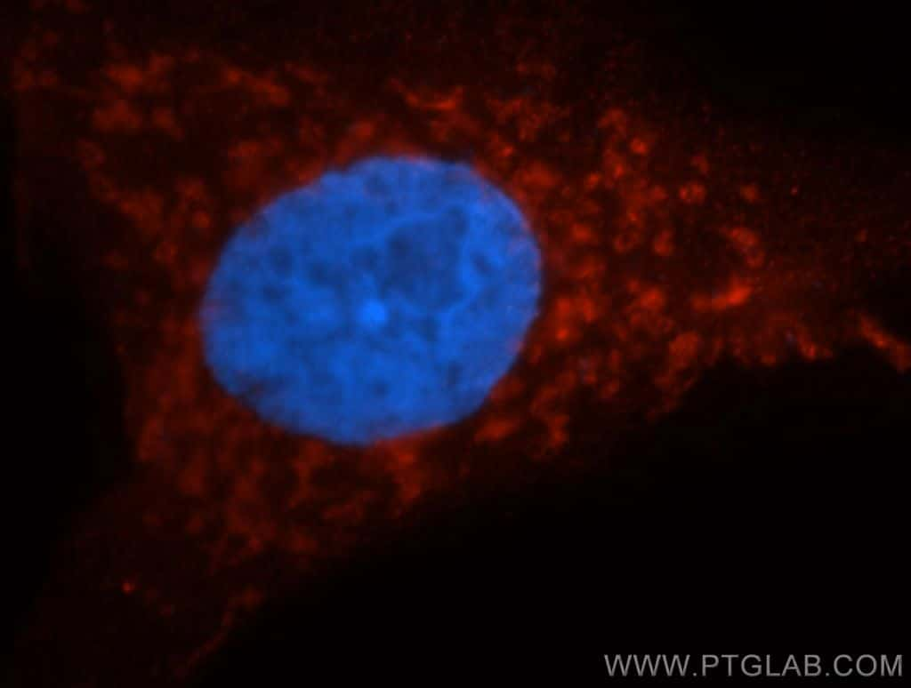 AK2 Antibody in Immunocytochemistry (ICC/IF)