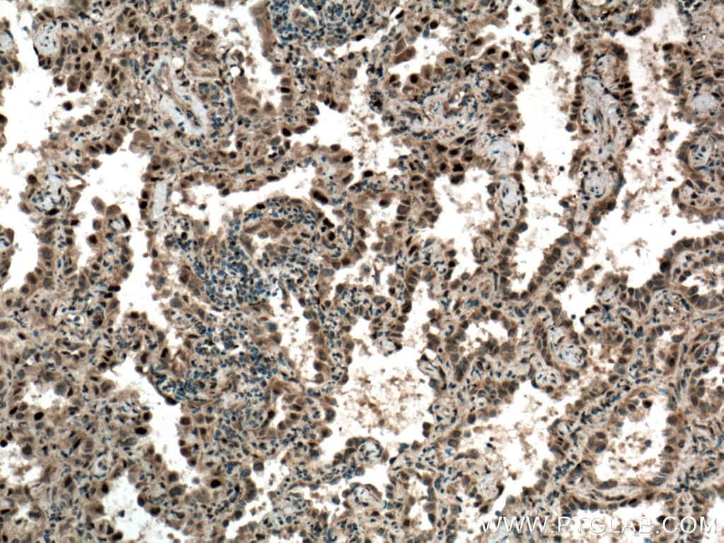 CDK4 Antibody in Immunohistochemistry (Paraffin) (IHC (P))