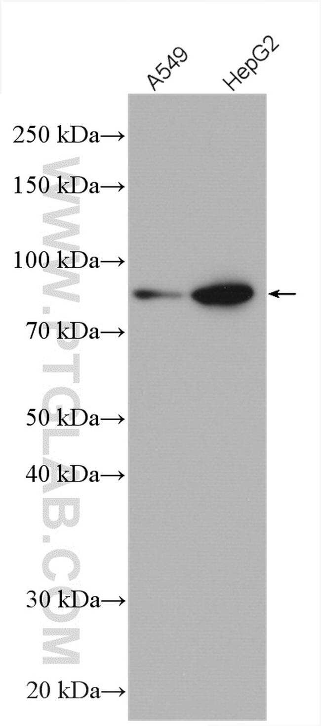 PLOD3 Antibody in Western Blot (WB)