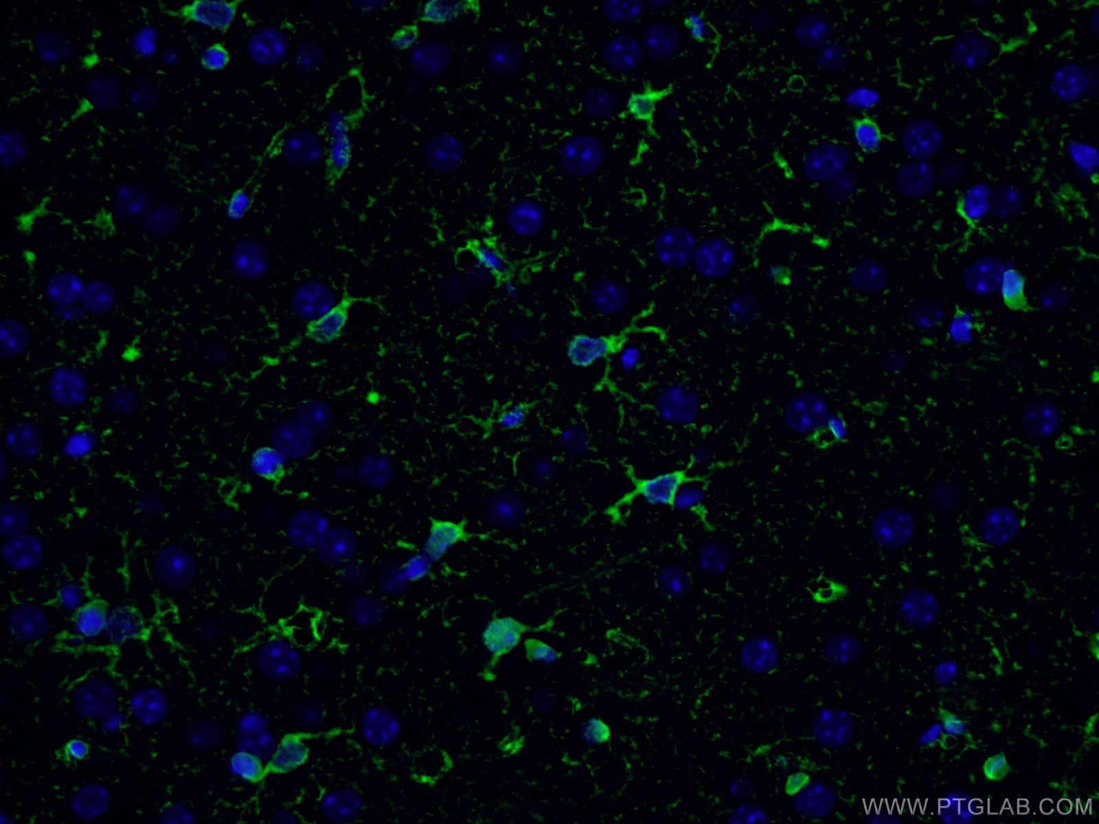Glutamine synthetase Antibody in Immunofluorescence (IF)