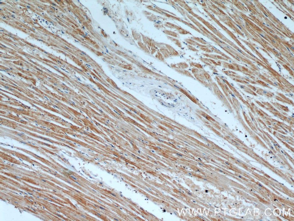 TPM2 Antibody in Immunohistochemistry (Paraffin) (IHC (P))