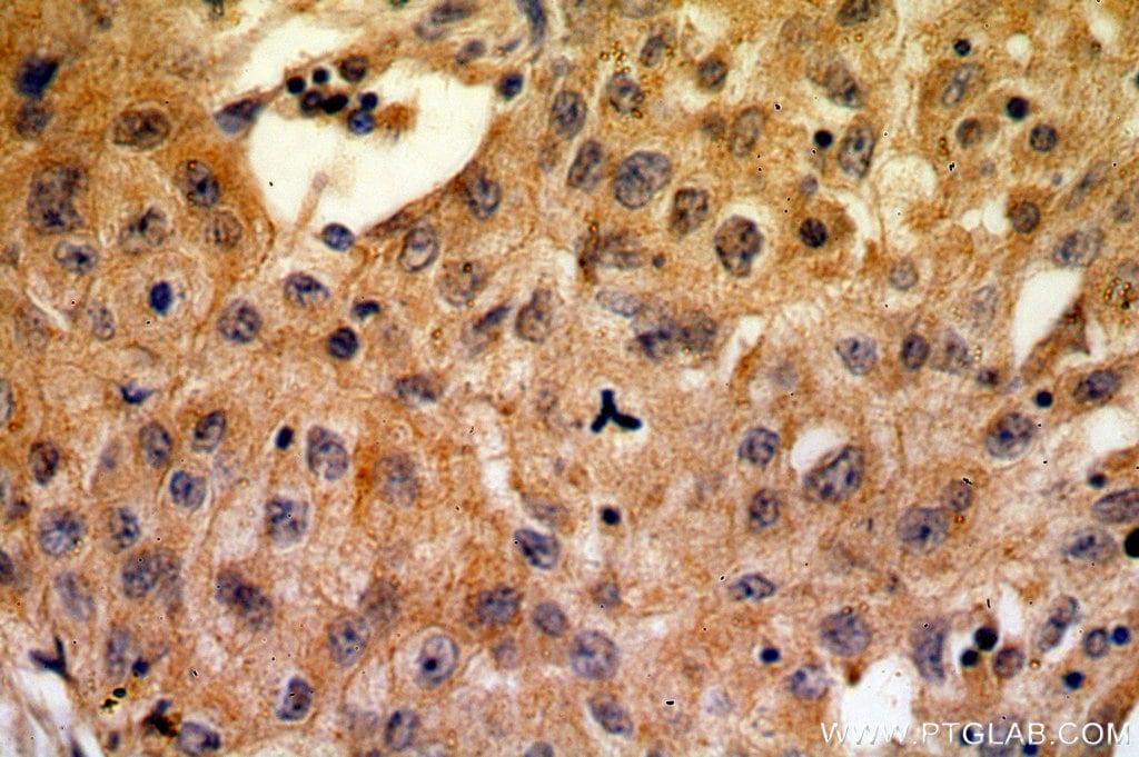 CA9 Antibody in Immunohistochemistry (Paraffin) (IHC (P))