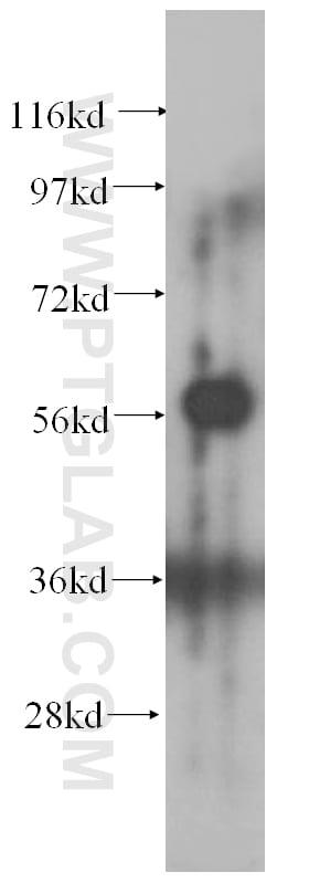 CA9 Antibody in Western Blot (WB)