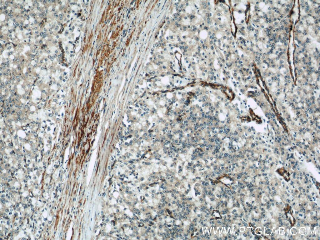 IFT57 Antibody in Immunohistochemistry (Paraffin) (IHC (P))