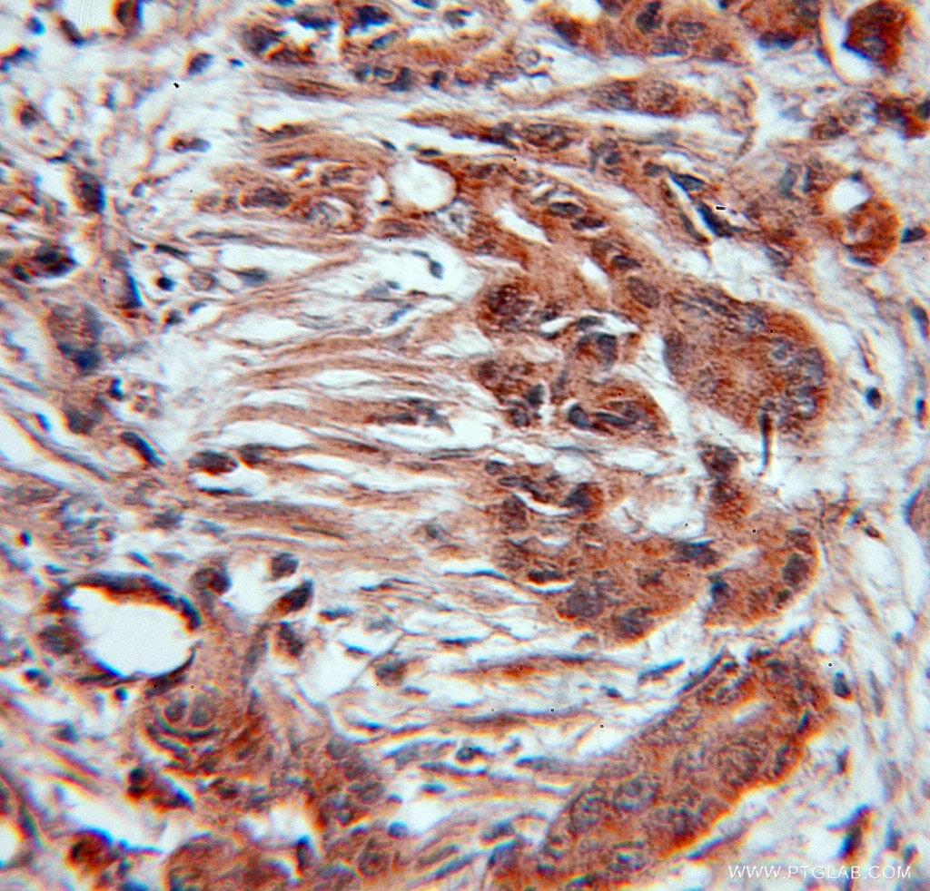 CUL3 Antibody in Immunohistochemistry (Paraffin) (IHC (P))