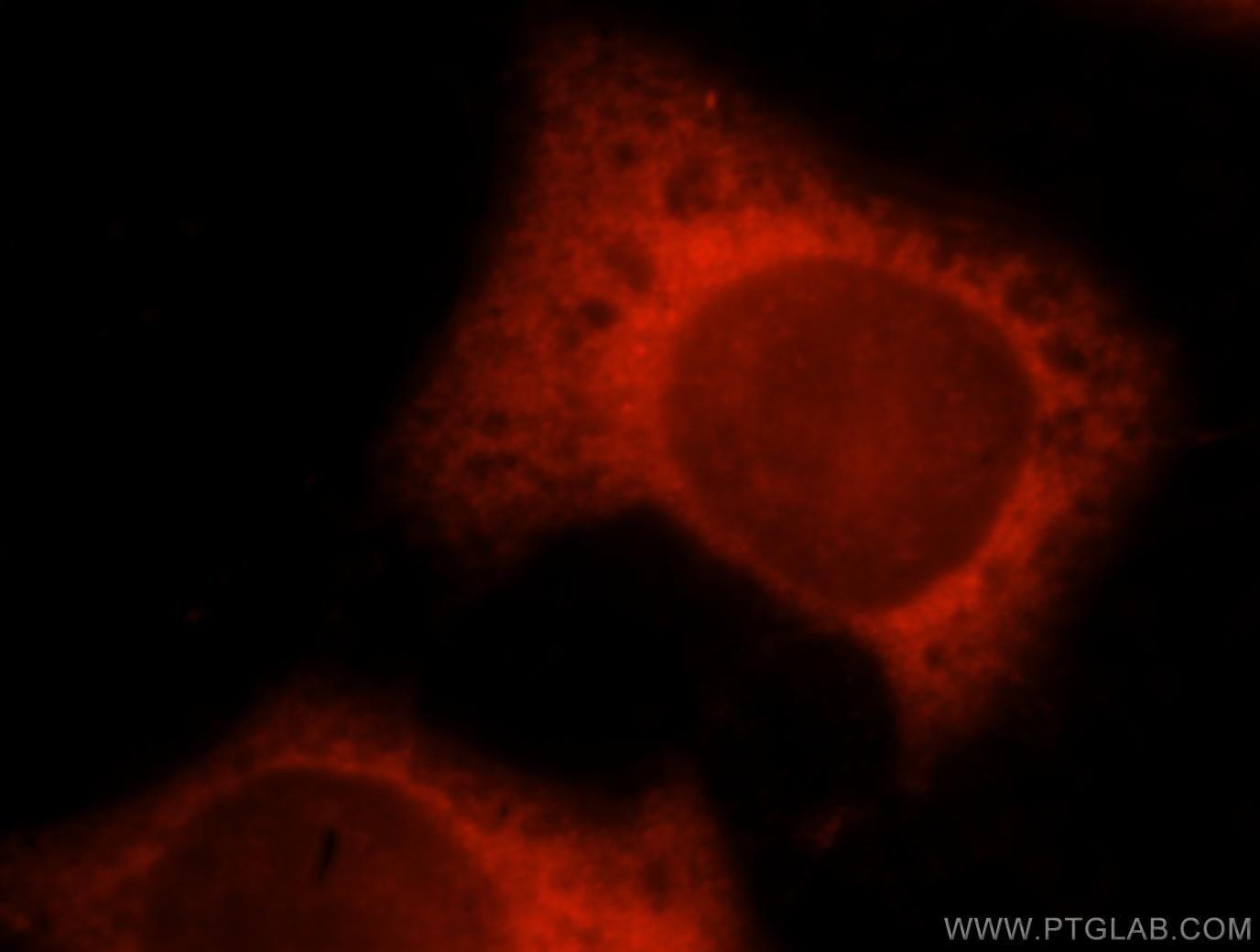 TXNRD1 Antibody in Immunofluorescence (IF)