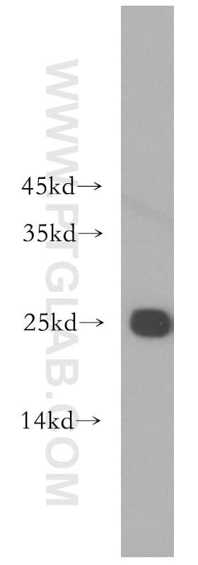 Rad51D Antibody in Western Blot (WB)