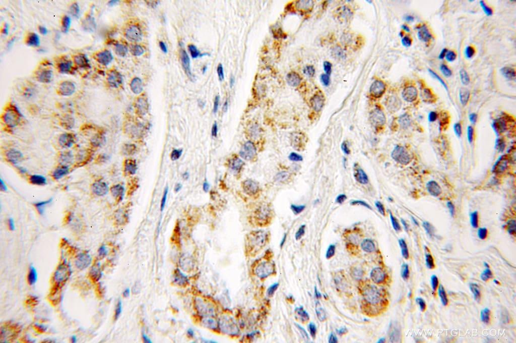 Aconitase 2 Antibody in Immunohistochemistry (Paraffin) (IHC (P))