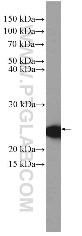 CBP/EIF4E Antibody in Western Blot (WB)