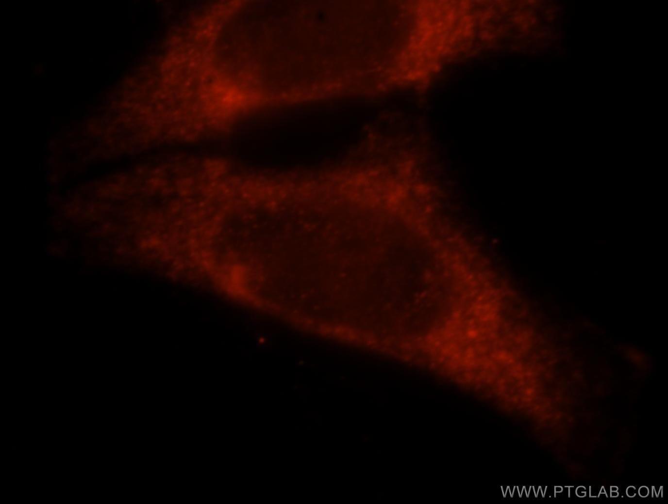 CBP/EIF4E Antibody in Immunofluorescence (IF)