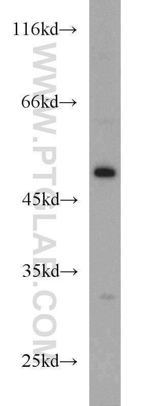 EIF2S3 Antibody in Western Blot (WB)