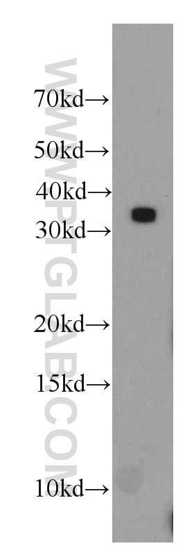 HNRNPA1 Antibody in Western Blot (WB)
