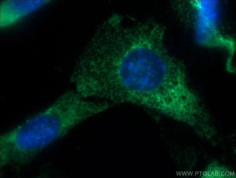 EXOSC10 Antibody in Immunofluorescence (IF)