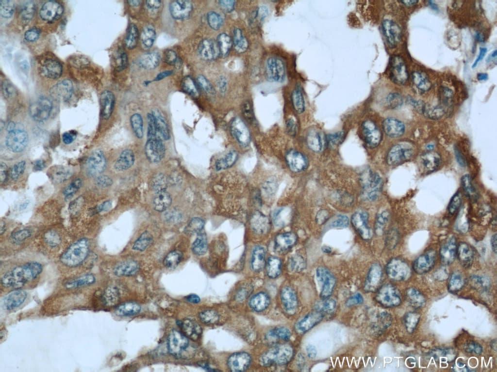 ALDOA Antibody in Immunohistochemistry (Paraffin) (IHC (P))