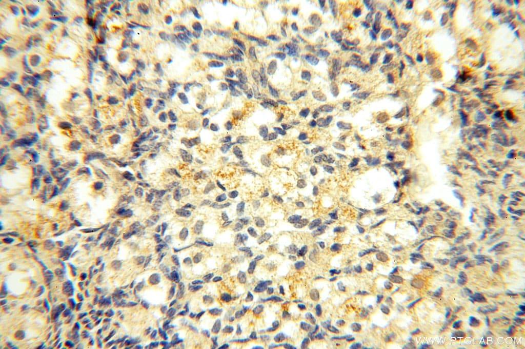 Casein Kinase 1 epsilon Antibody in Immunohistochemistry (Paraffin) (IHC (P))
