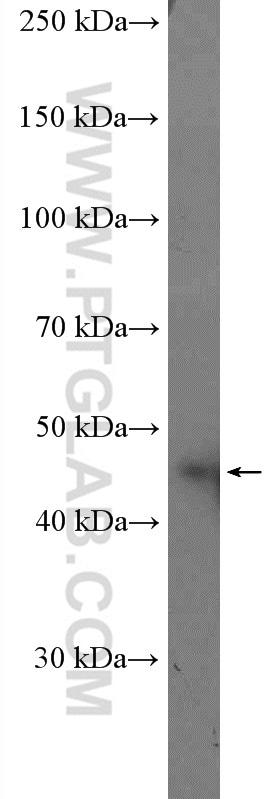 Casein Kinase 1 epsilon Antibody in Western Blot (WB)