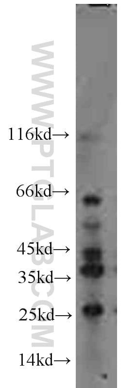 FLCN Antibody in Western Blot (WB)