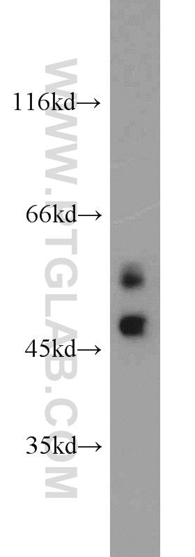 MUM1/IRF4 Antibody in Western Blot (WB)