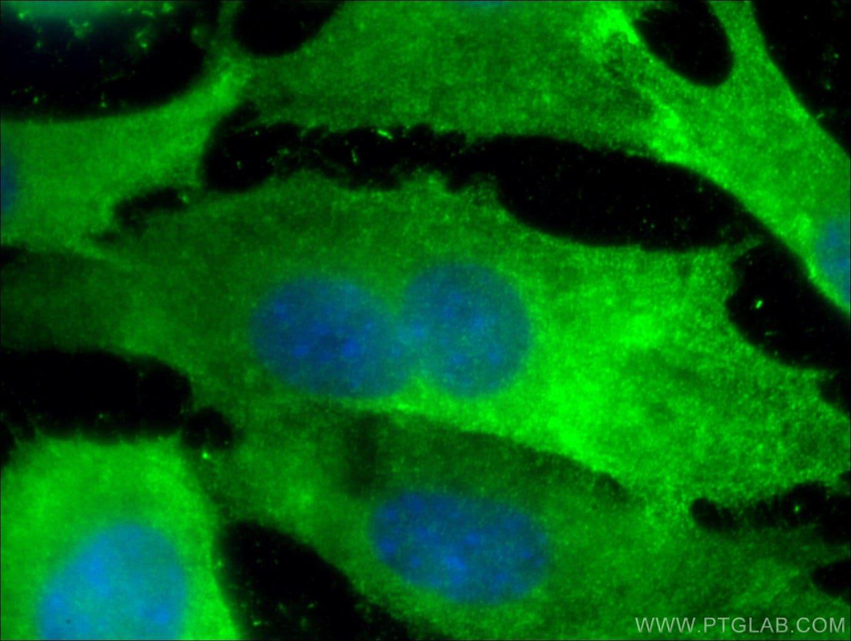 Annexin A2 Antibody in Immunofluorescence (IF)