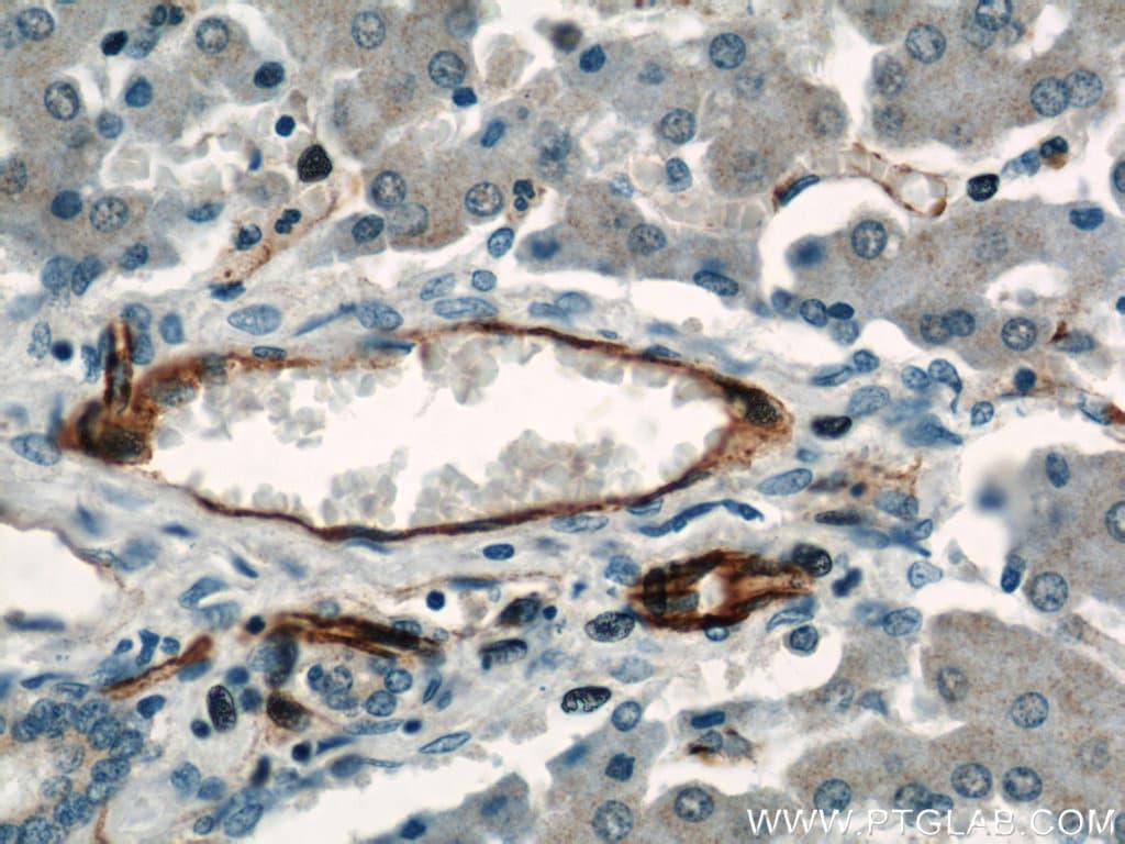 CD31 Antibody in Immunohistochemistry (Paraffin) (IHC (P))