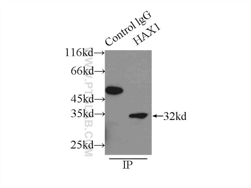 HAX1 Antibody in Immunoprecipitation (IP)