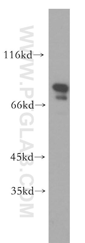 RMP Antibody in Western Blot (WB)