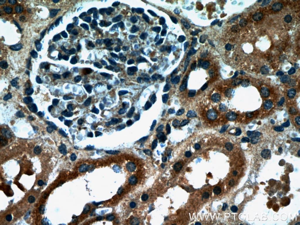 HARS2 Antibody in Immunohistochemistry (Paraffin) (IHC (P))