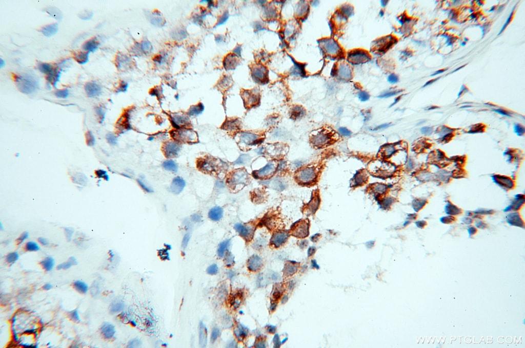 GOLGA2/GM130 Antibody in Immunohistochemistry (Paraffin) (IHC (P))