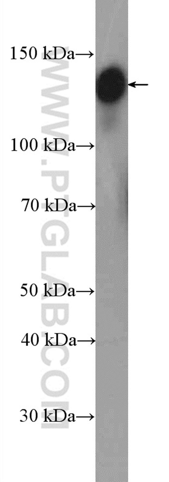 GOLGA2/GM130 Antibody in Western Blot (WB)