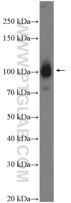 alpha Actinin Antibody in Western Blot (WB)