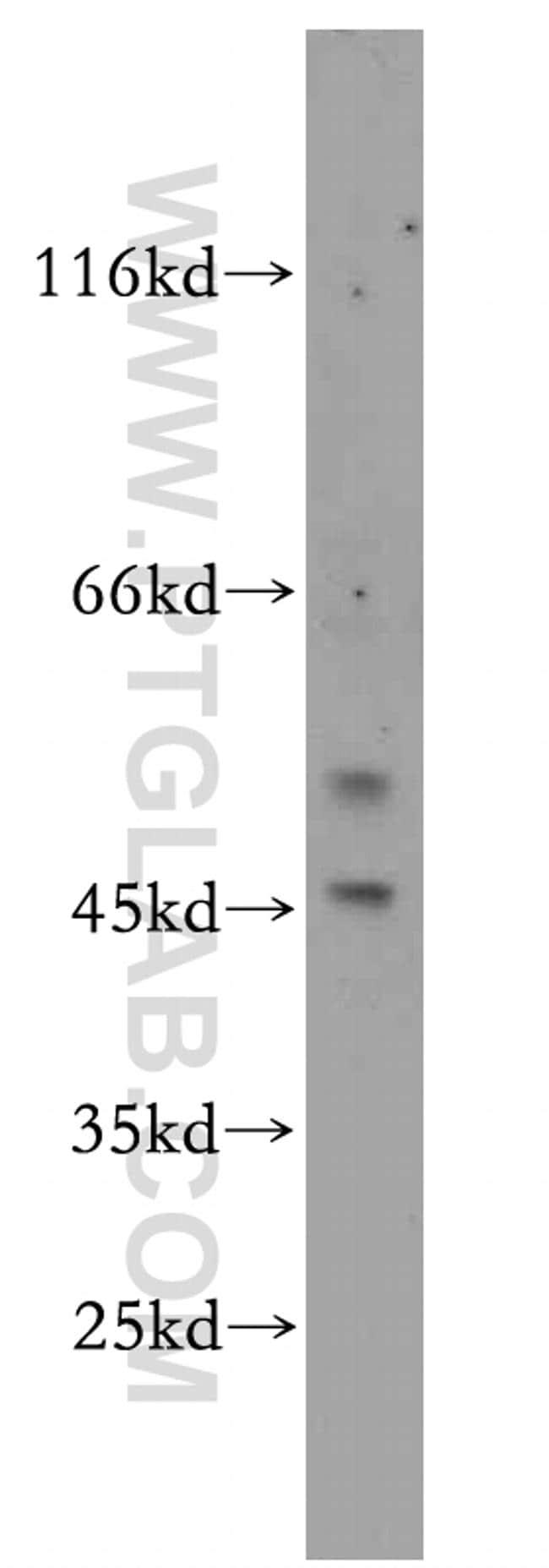EYA2 Antibody in Western Blot (WB)