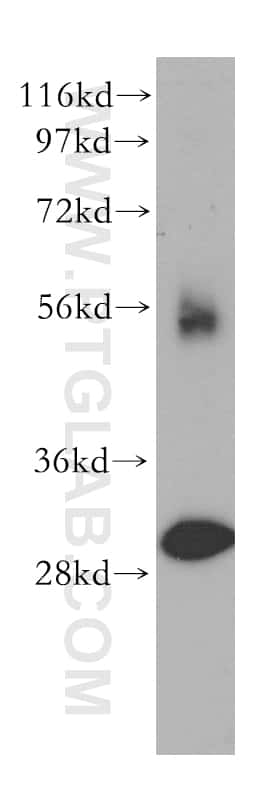 TOLLIP Antibody in Western Blot (WB)